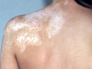 Витилиго (Vitiligo)